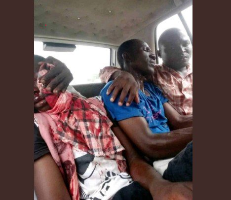 OMG!!! Channels TV Journalist Shot As Police Clash With Shiites In Abuja (Photos) 1