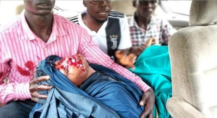 OMG!!! Channels TV Journalist Shot As Police Clash With Shiites In Abuja (Photos) 3