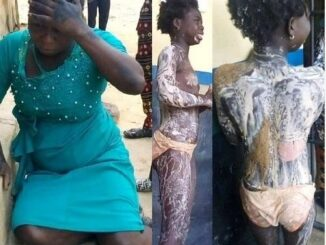 Aunt Destroys Niece's Body With Hot Boiling Water (Graphic Photos) 76