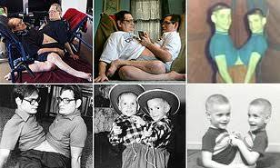 World's Longest-Living Conjoined Twins Die At 68 (Check Pictures) 81
