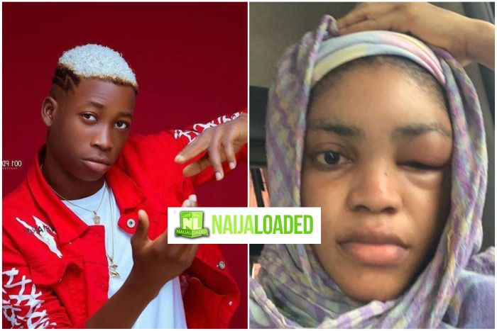 Lil Frosh's Girlfriend – Gift Opens Up On What Reportedly Led To Him Beating Her