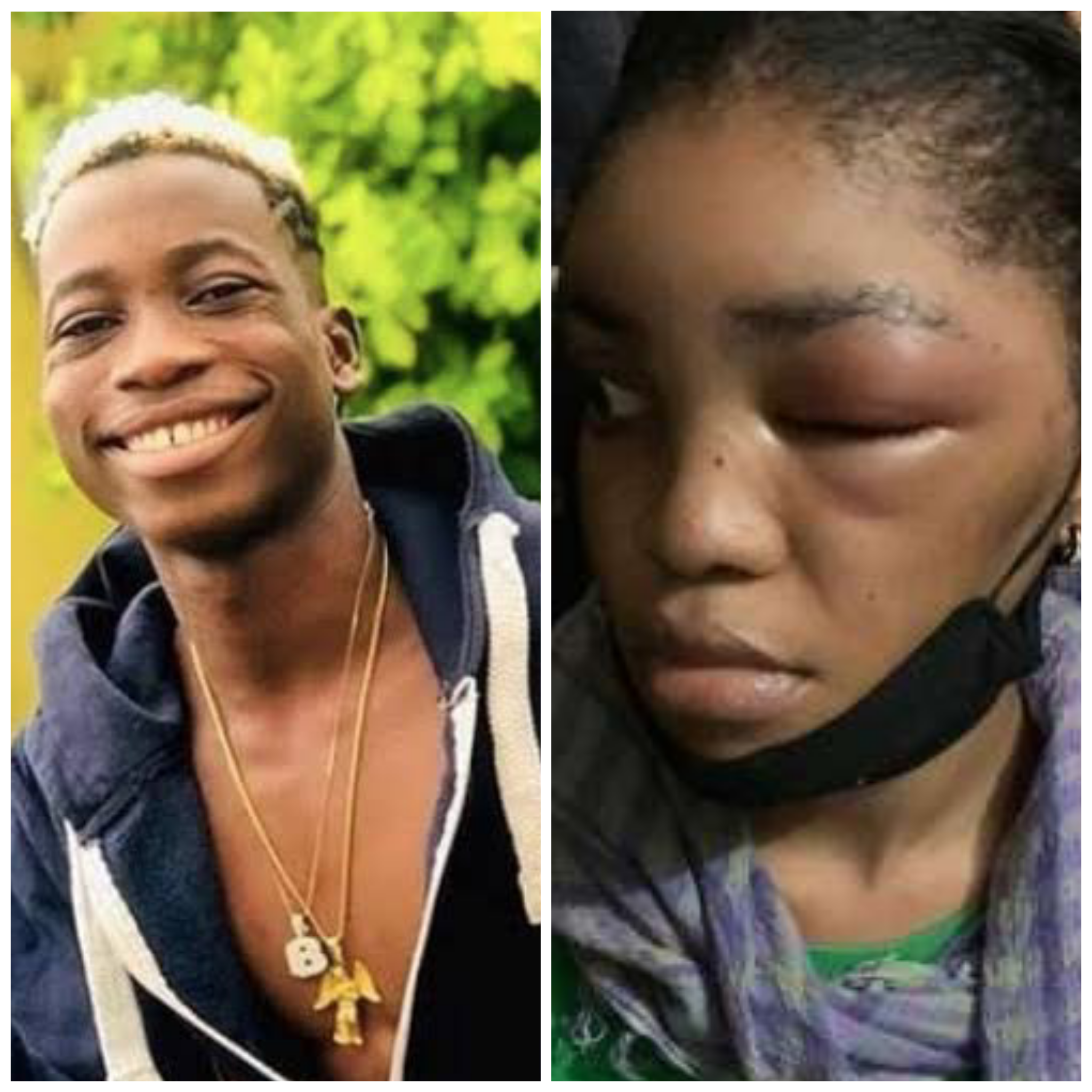 Davido's New Signing 'Lhil Frosh' Called Out For Allegedly Beating His Girlfriend (Photos)