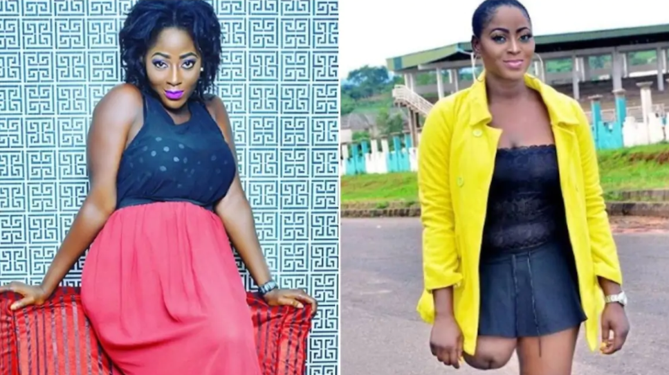 She's Still Going Strong After Losing Her Leg At The Age of 13, See Her Fresh Photos min